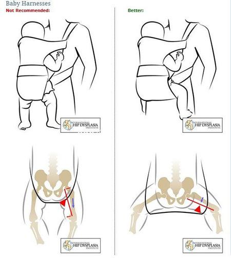 Posición correcta en mochila ergonómica