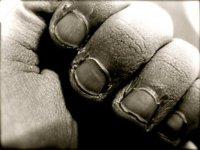 Morderse las uñas, una manía peligrosa para la salud