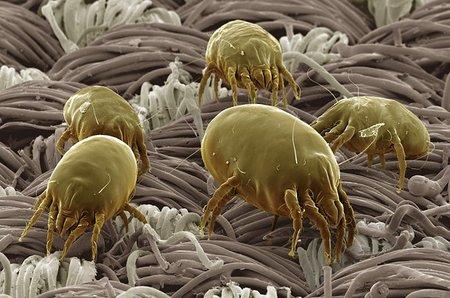 La mayoría del polvo de tu casa no es piel muerta de tu cuerpo sino cacas de ácaro
