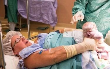 """Una mujer saca a sus gemelas de su propio útero durante una """"cesárea natural"""""""