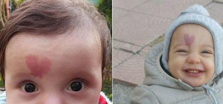 'Love Baby': el bebé que nació con una mancha en forma de corazón en la frente