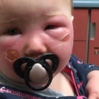 Mucho cuidado con lo que le aplicas a tu bebé: su hija de 14 meses sufre quemaduras en la cara a causa de un spray solar