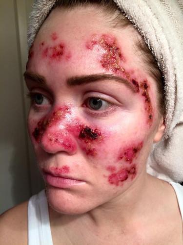 Este selfie de una madre con cancer de piel advierte contra las cabinas de bronceado