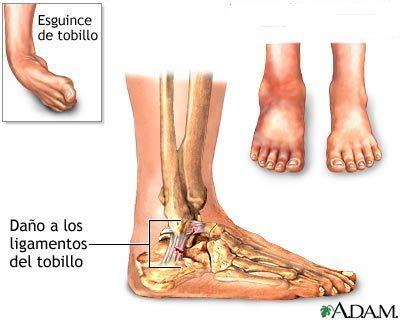 Tres cosas que hay que hacer para evitar lesiones de tobillo