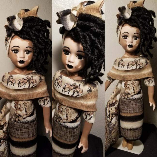 Las muñecas con vitiligo que muestran a los niños la belleza en cualquier tipo de piel
