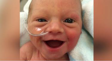La sonrisa de una bebé prematura a los cinco días de nacer que da esperanza a cientos de padres