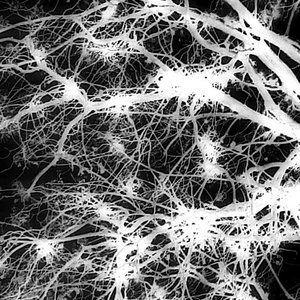 Neuronas protegidas de la muerte celular