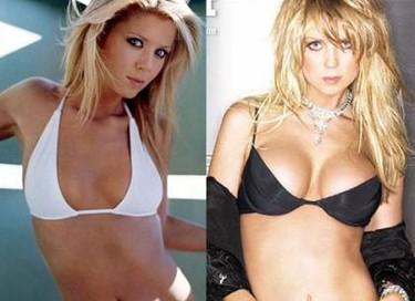 Cirugia de celebrities