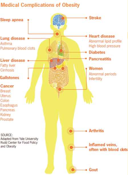 Complicaciones Obesidad