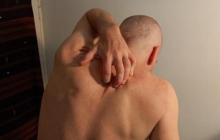 El extraño caso de la picazón crónica que te incita a rascarte hasta morir