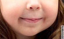Operación sonrisa en Bolivia, cirugía de labio leporino y paladar hendido