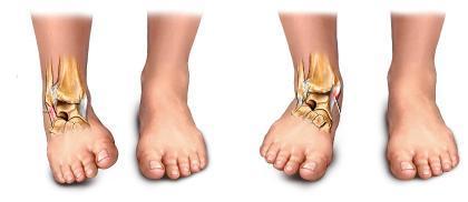 El esguince de tobillo (II): causas, síntomas y prevención