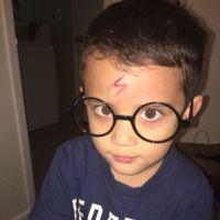 La inventiva de una madre: cómo convertir una herida en un disfraz de Harry Potter