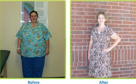 Cuando perdemos peso ¿a dónde se va la grasa?