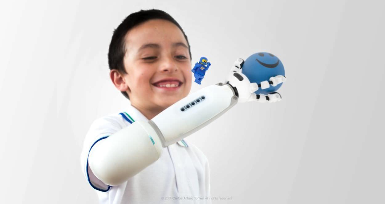 Esta prótesis para niños es compatible con Legos y eso la hace la más increíble del mundo