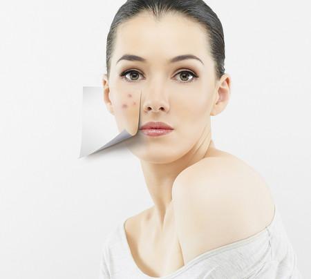 Manchas y acne