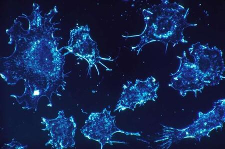 Este sistema de inteligencia artificial puede mejorar el diagnóstico de cánceres metastásicos complicados