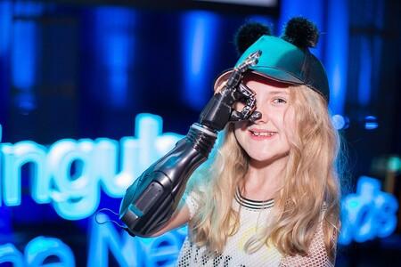 Tilly Lockey posa con unas prótesis de Open Bionics.