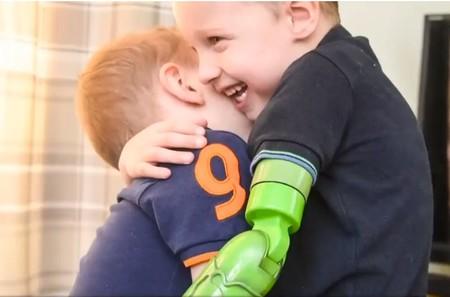 El emotivo primer abrazo entre dos hermanos, después de que a uno de ellos le colocaran una prótesis funcional