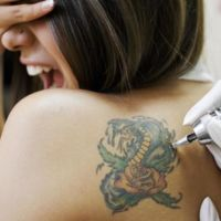 Arrepentimiento ahora sin dolor, sí, llegó la crema que promete borrar tatuajes