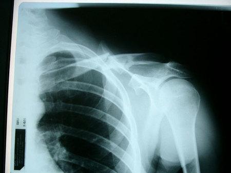 radiografia1.jpg