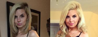 ¿Y si Instagram pudiera ayudar a superar la anorexia?