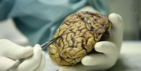 Científicos españoles consiguen frenar el crecimiento del cáncer cerebral más común