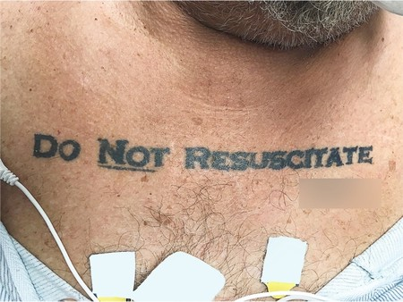 Do Not Resucitate