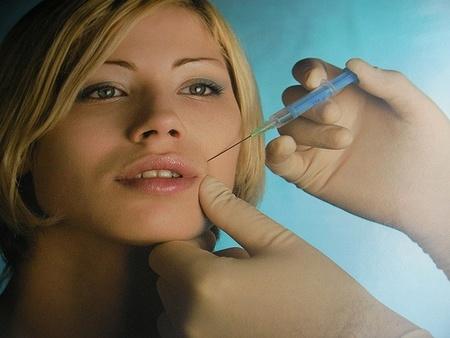 Botox, ¿la solución? II