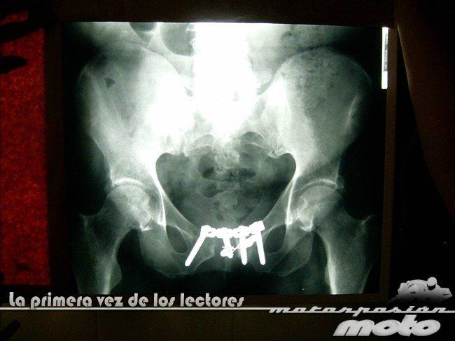 Radiografía de Lucas