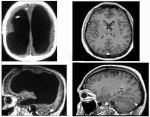 Cerebro pequeño, vida normal