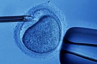 Primer bebé nacido en España libre del mal de los huesos de cristal