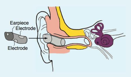 Un nuevo dispositivo menos intrusivo quiere ayudar a monitorizar nuestra actividad cerebral