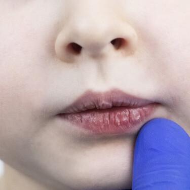 Labios secos y agrietados en niños, una condición muy habitual en invierno: así debemos tratarlos y cuidarlos