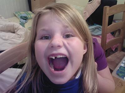 ¿Cómo actuar ante un traumatismo dental en niños?