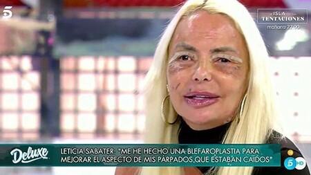 Este es el impactante rostro de Leticia Sabater tras someterse a su enésima cirugía estética