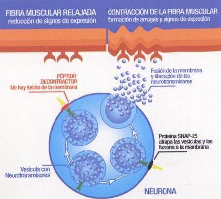 contracción muscular y linea de expresion