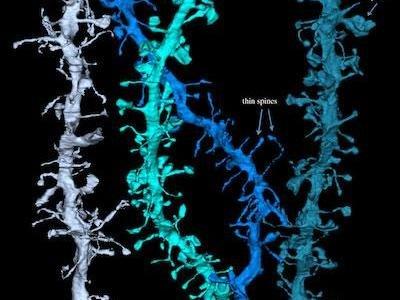 Imágenes de lo que les pasa a las neuronas al dormir: adelgazan