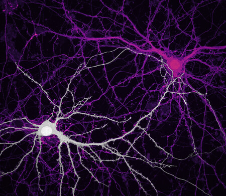 9 Jasonkirk 2neurons
