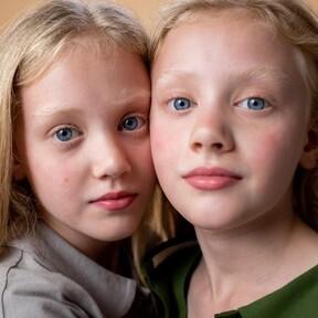 Los gemelos idénticos podrían no ser tan idénticos como se pensaba, de acuerdo con un nuevo estudio