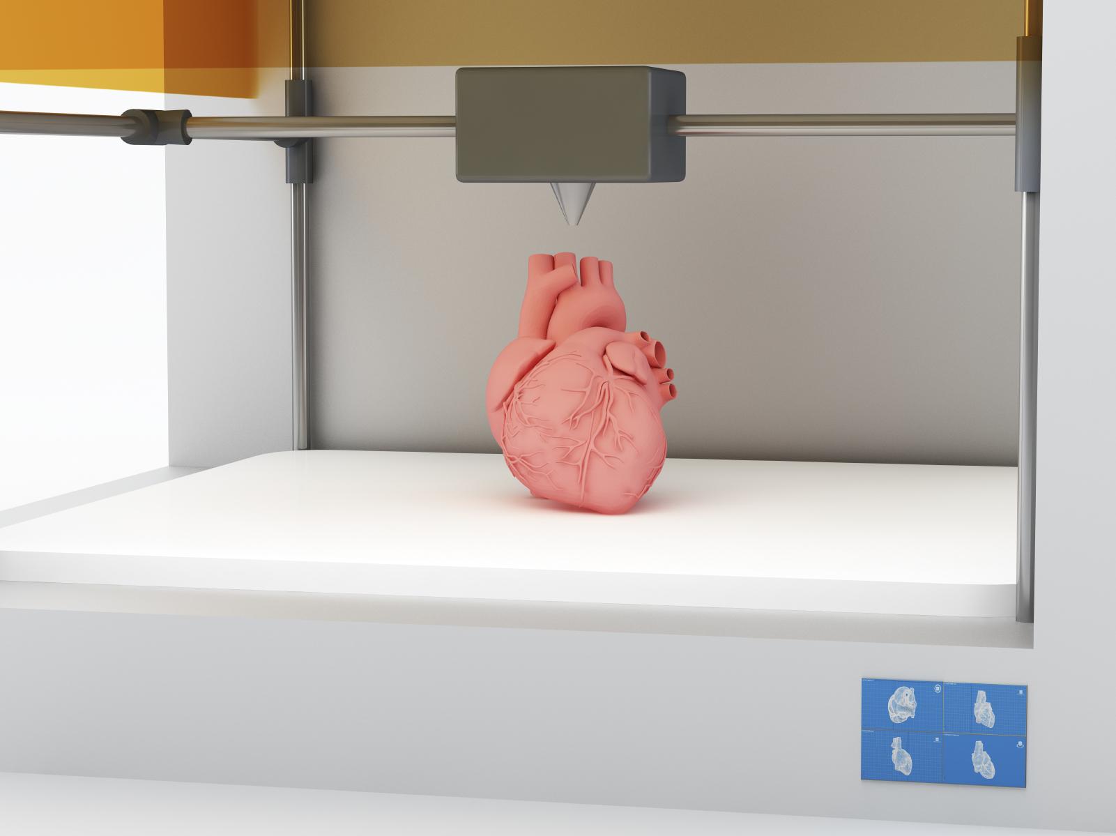 Cómo puede cambiar la vida a un médico la impresión en 3D