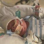 Archie, el bebé prematuro de 765 gramos que superó una infección por E.coli, una sepsis y el Covid