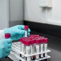 AstraZeneca reanuda los ensayos de su vacuna contra COVID después de pausarla una semana como medida de precaución