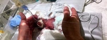 El niño prematuro más pequeño del mundo, que nació con 268 gramos, ha logrado sobrevivir y se va a casa