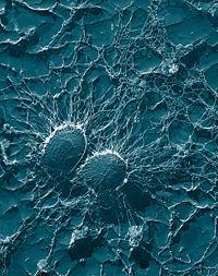 La muerte súbita podría estar relacionada con bacterias, según un estudio