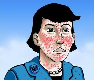 Qué es el acné y la Propionibacterium acnes