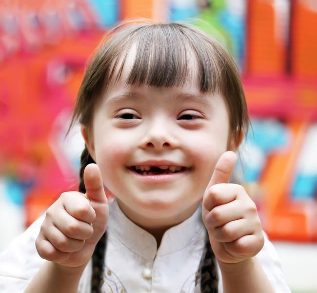 En Islandia sólo nacen, de media, dos niños al año con Síndrome de Down