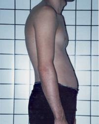 Curvaturas de espalda
