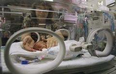 Las causas de los partos prematuros