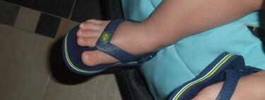 Las chanclas de dedo no son un calzado adecuado para bebés y niños pequeños